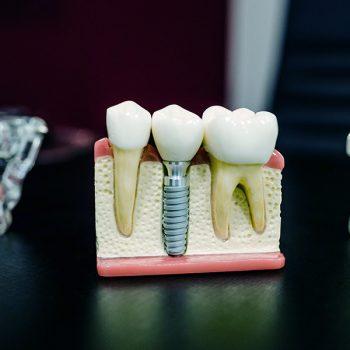 dental feature